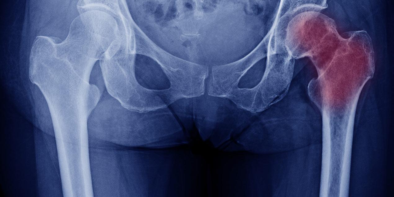 Οστεονέκρωση Μηριαίας Κεφαλής