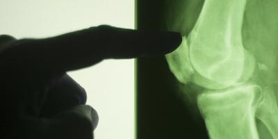 Οστεονέκρωση Μηριαίου Κονδύλου